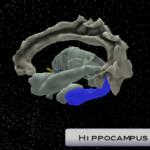 アルツハイマー病など認知症に効く! 脳と体を同時に動かす運動プログラム